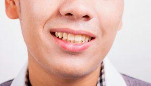 guy with yellow teeth