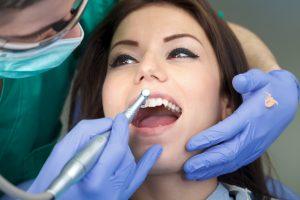 lady undergoing a regular dental checkup