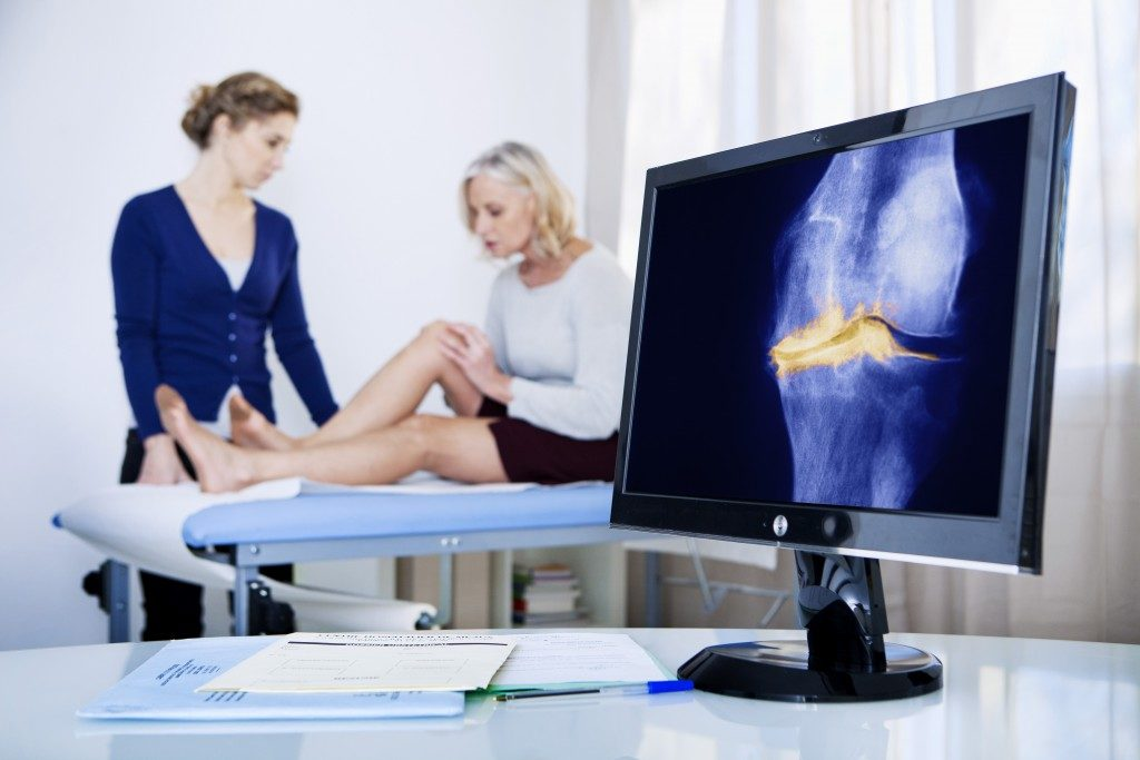 woman diagnosed with knee problems