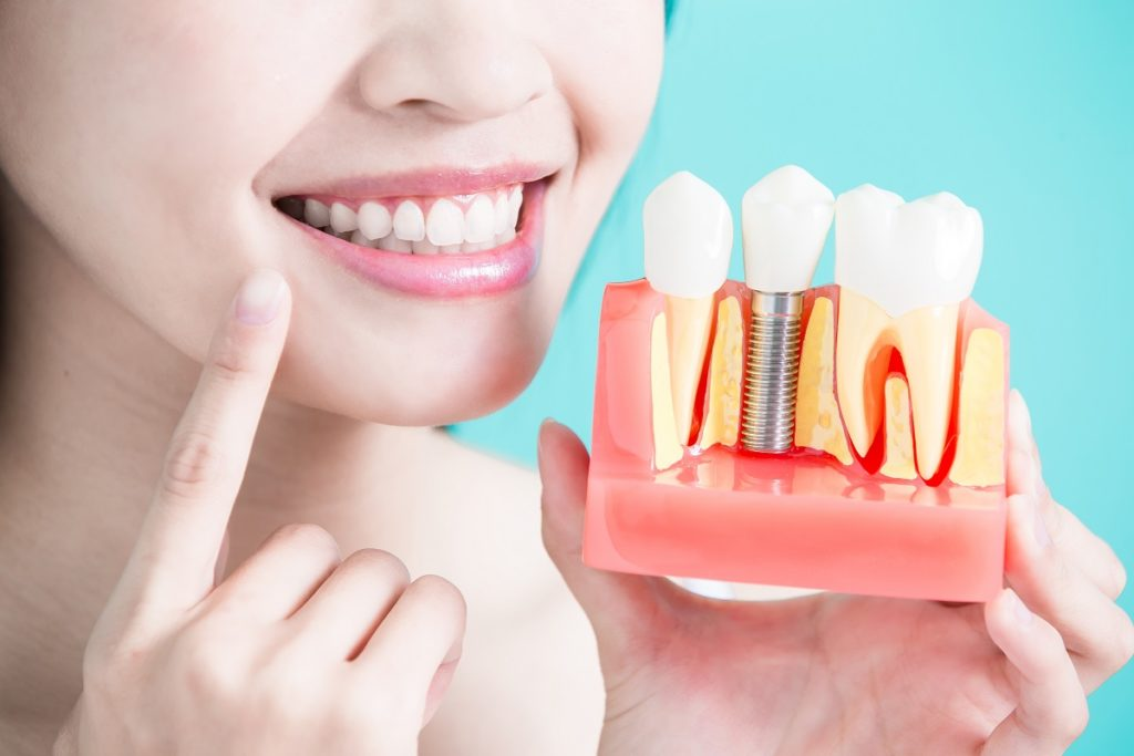 woman pointing to her teeth while holding a teeth sample model