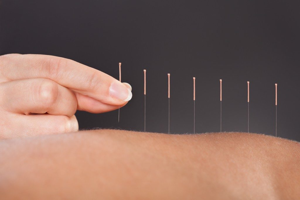 Acupuncture needles on skin